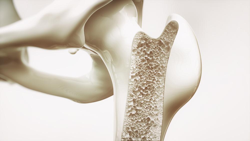 Efeito benéfico do composto boswellia no metabolismo ósseo na osteoporose experimental