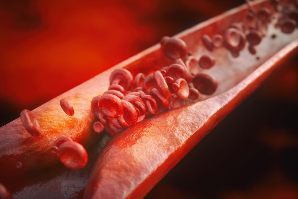 Suplementação de vitamina B12 e vitamina C melhora a reatividade arterial e a estrutura em fumantes passivos